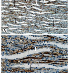 representative slides of immunohistochemical staining for mgp download scientific diagram [ 850 x 1149 Pixel ]