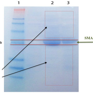 SDS-PAGE gel analysis of affinity chromatography purification of the...   Download Scientific Diagram