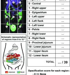 schematic representation of the poi  [ 850 x 1172 Pixel ]
