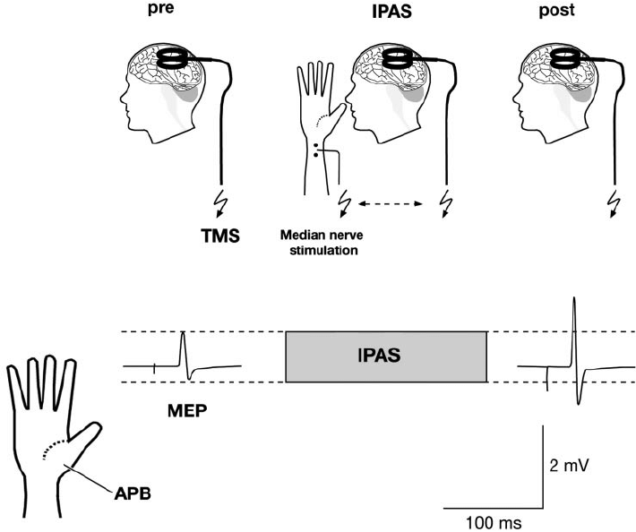 Interventional paired associative stimulation (IPAS