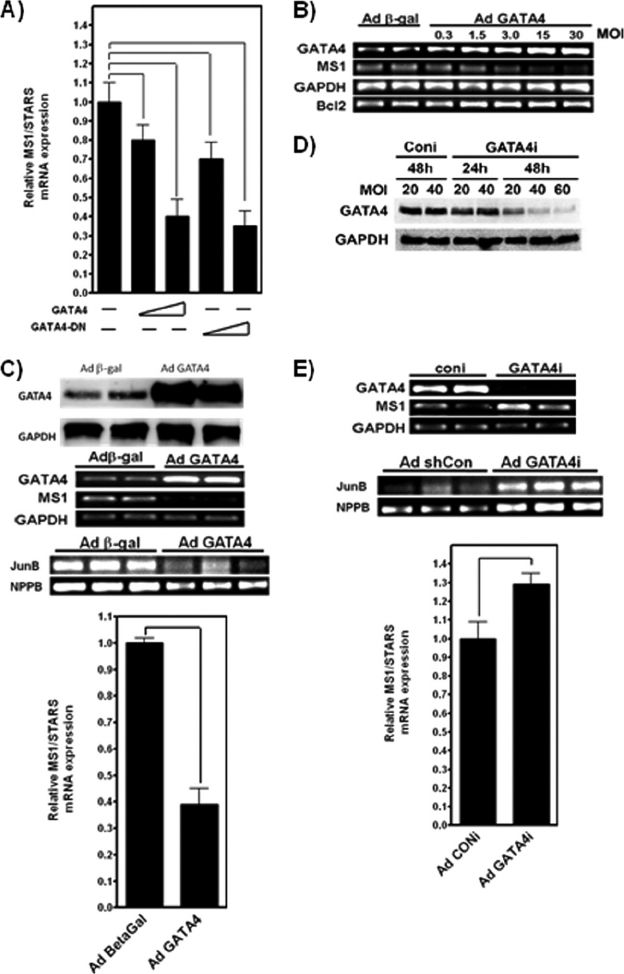 GATA4 modulates ms1 gene expression in H9c2 cells and