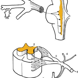 Z-joint anatomy. ( A ) Relevant anatomy. NR, nerve root