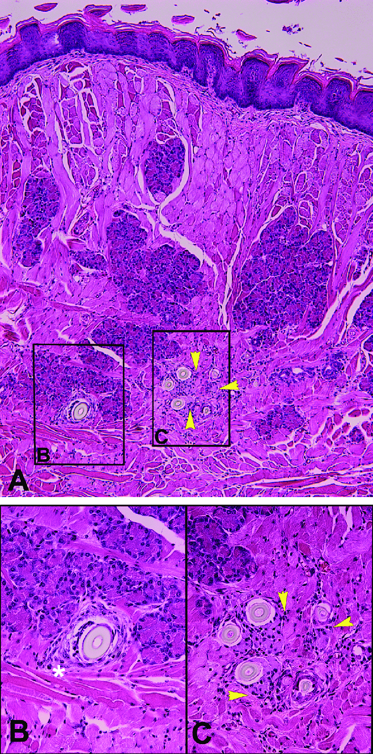 hight resolution of  a cross section of tongue with hair induced inflammation at the level