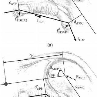 Finger pulley structure around/near the DIP joint. The