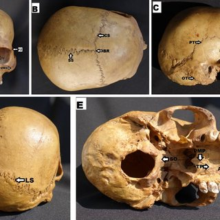 Age estimation based on closure pattern of cranial and ...