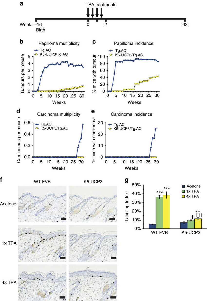 UCP3 overexpression impedes tumour promotion. (a) Timeline