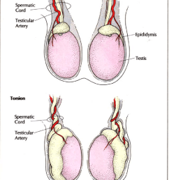 torsion results when the testis rotates on its long axis within the download scientific diagram [ 850 x 1146 Pixel ]