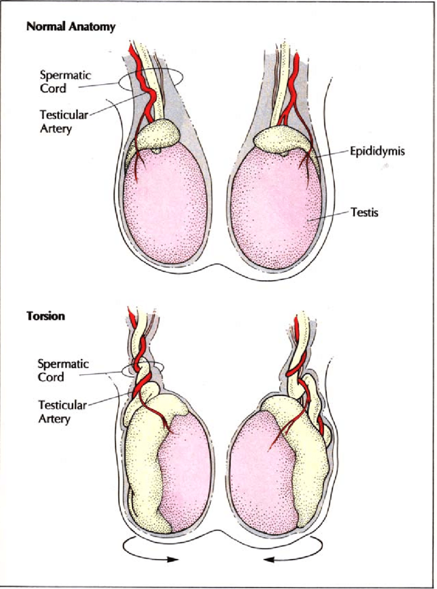 medium resolution of torsion results when the testis rotates on its long axis within the download scientific diagram