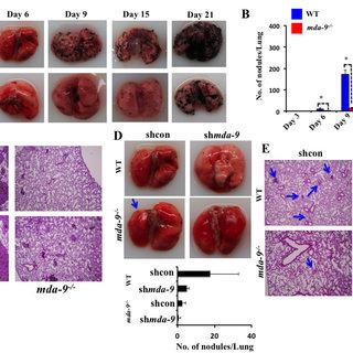 Lung metastasis development is inhibited in mice lacking...   Download Scientific Diagram