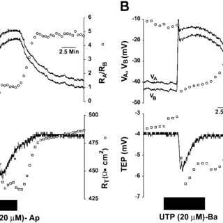 CPA (2.5 M) blocks apical or basal ATP-induced changes in