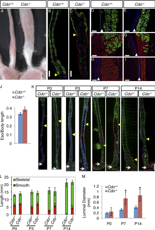 small resolution of cdo mice have megaesophagus and display defective proximal to distal progression