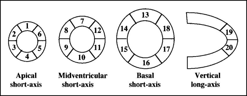 Schema of LV 20-segment model as described by Berman et al