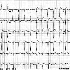 A 12-lead ECG showing 3:1 Mobitz II heart block with a