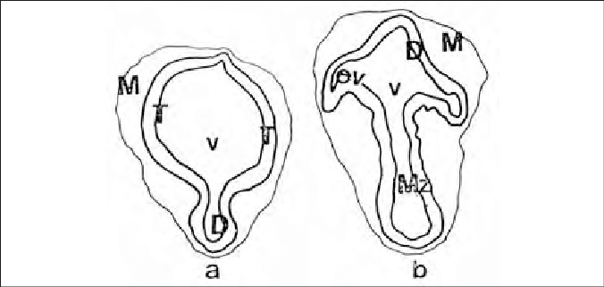 Schematic drawings of rostral (a) and caudal (b) frontal