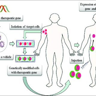 in vivo gene therapy diagram 2004 mazda 6 bose subwoofer wiring strategies for ex is performed with the genetic