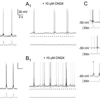 (PDF) Glycinergic Pacemaker Neurons in PreBotzinger