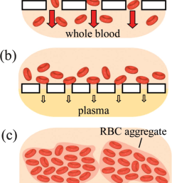schematic illustration of the use of red blood cell rbc agglutination to improve efficiency [ 850 x 1234 Pixel ]