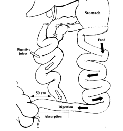 diagram of biliopancreatic diversion showing that the only intestinal segment available for digestion and absorption [ 850 x 1139 Pixel ]
