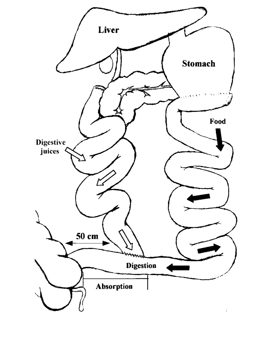 hight resolution of diagram of biliopancreatic diversion showing that the only intestinal segment available for digestion and absorption