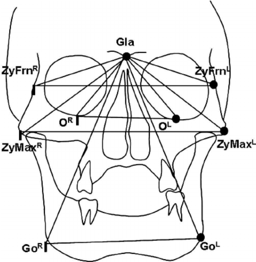 Landmarks and planes used in frontal cephalometric
