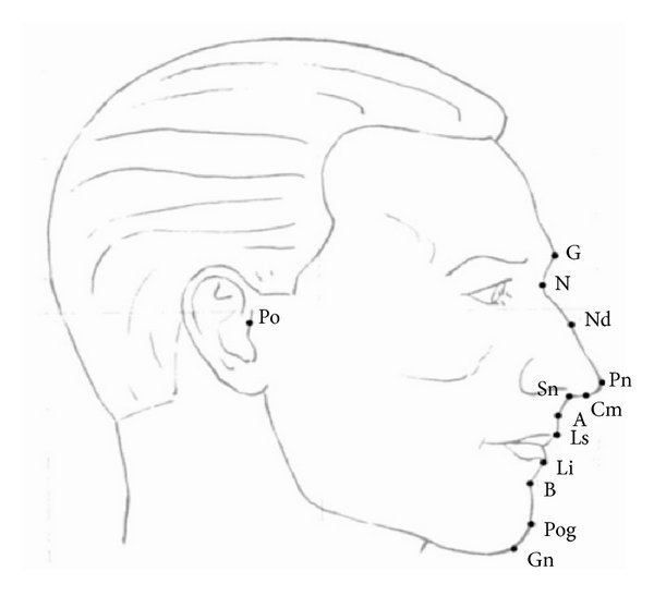 Profile soft tissue landmarks used in this study. G