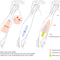 Triceps Brachii Diagram Wiring Of Motorcycle Alarm Biceps 4 12 Kenmo Lp De Schematic Mapping Motor Points For And Brachialis Muscle Rh Researchgate Net