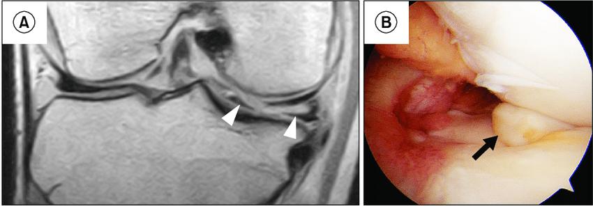 A medial meniscus posterior horn (MMPH) horizontal tear ...