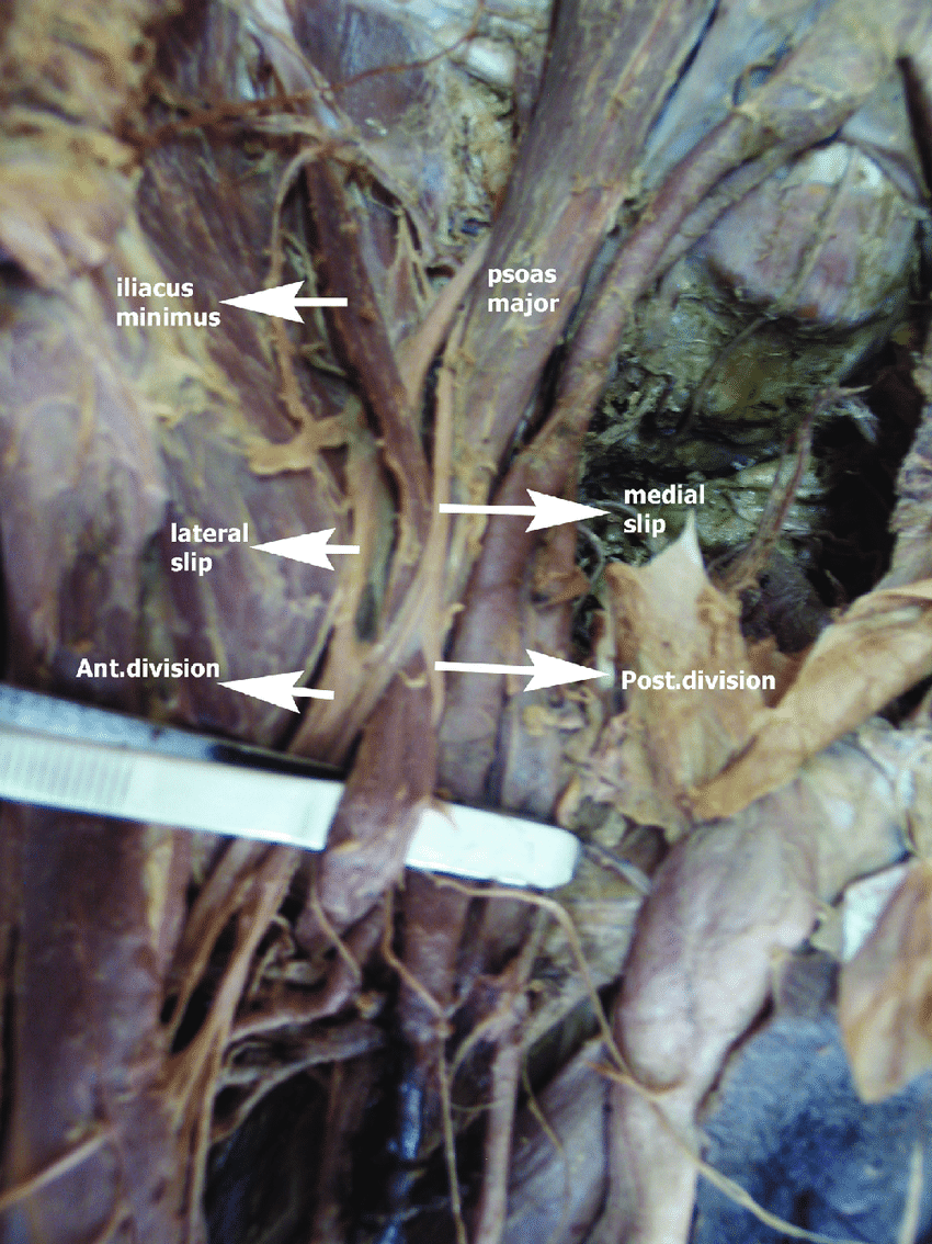 medium resolution of iliacus minimus muscle with splitting of the femoral nerve into medial download scientific diagram
