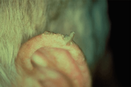 Horn SQCC Treatment: 1-Squamous cell carcinoma in situ ...