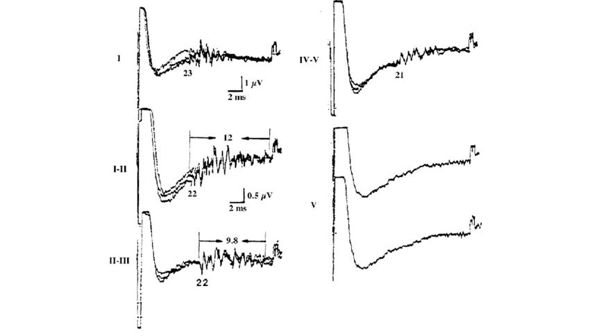 Sensory nerve conduction abnormalities in tarsal tunnel