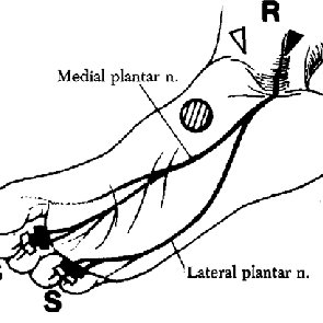 Sensory nerve conduction in medial plantar neuropathy. The