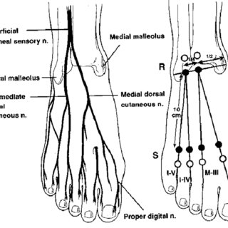 Entrapment sites of the tibial nerve in tarsal tunnel