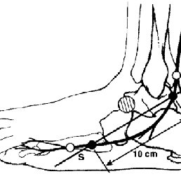 Oh's method for sensory nerve conduction of the medial and