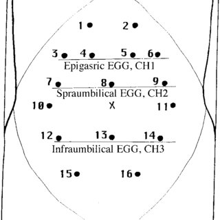 Schematic diagram showing the location of the 16