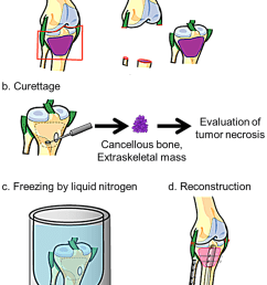 procedure of reconstruction with frozen autograft and assessment of chemotherapeutic effect  [ 850 x 1263 Pixel ]
