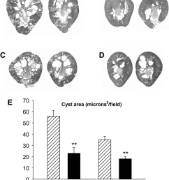 effect of hwi on renal cyst development in male and female pck rats micrographs of [ 850 x 1074 Pixel ]