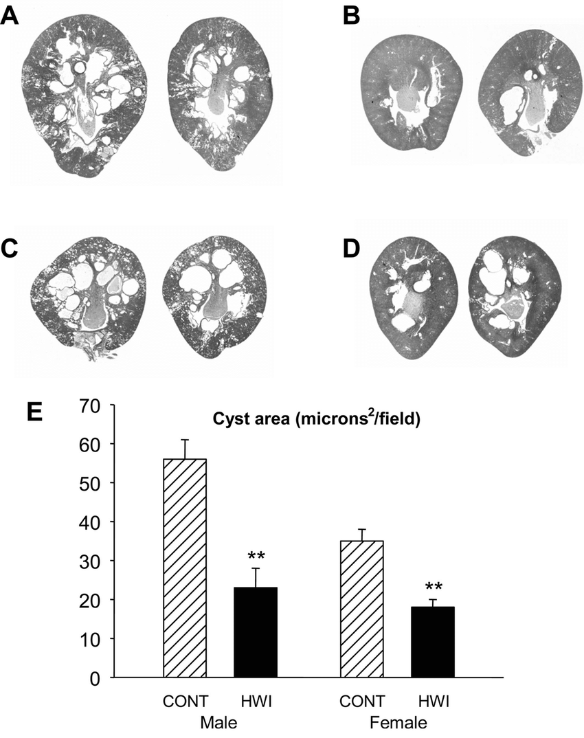 hight resolution of effect of hwi on renal cyst development in male and female pck rats micrographs of
