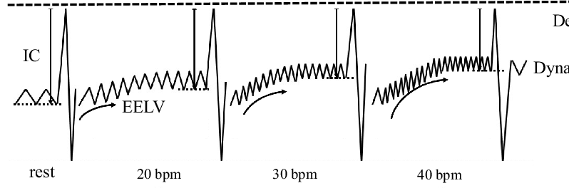 Metronome-paced incremental hyperventilation (MPIH) method