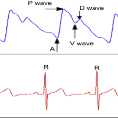 Labeled Ekg Diagram 2008 Dodge Ram Wiring Radial Arterial Pulse Wave And Ecg A The Typical Marked With P V D Where Stands For Base Point Percussion