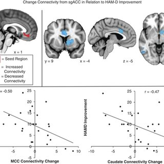 Change in connectivity from subgenual cingulate cortex