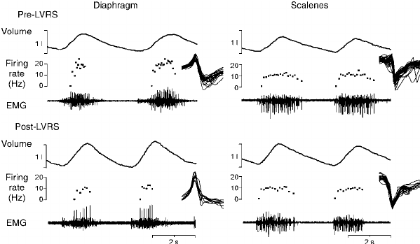 Raw data from one subject, recorded from the diaphragm and