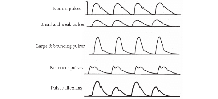 Four classes of waveform based on dicrotic notch This