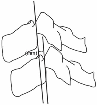 Measurement technique for vertebral body translation. From