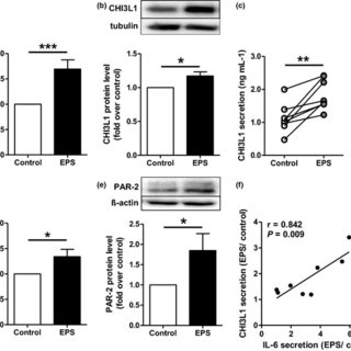 (PDF) The exercise-regulated myokine CHI3L1 stimulates