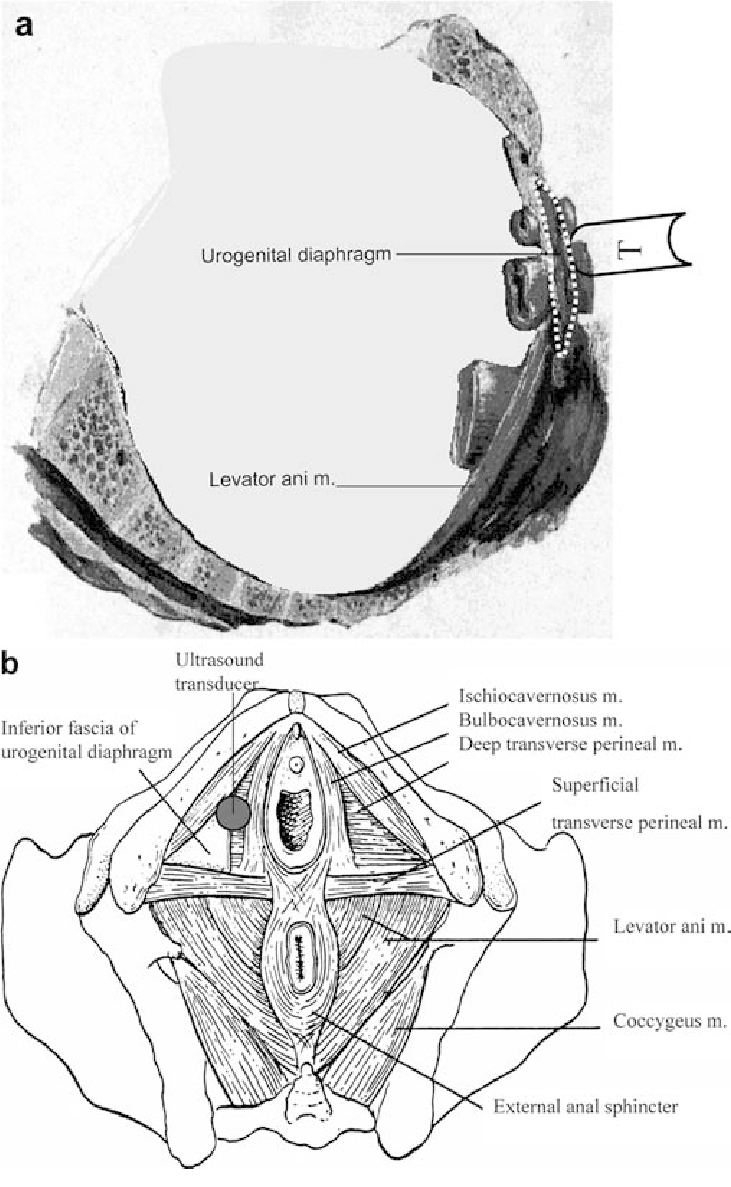 hight resolution of a b placement of the ultrasound transducer t on the perineum a