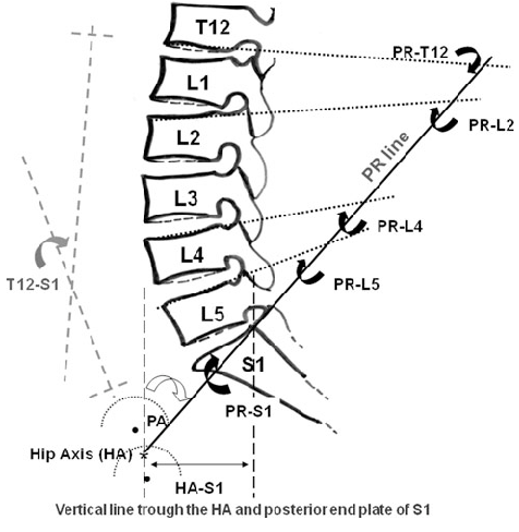 Line drawing showing pelvic radius (PR line) and the