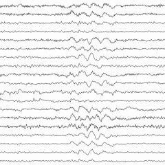 (PDF) Non-epileptiform EEG abnormalities: An overview