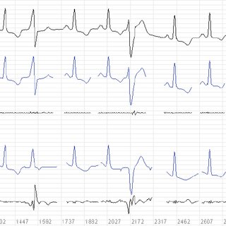 (PDF) Efficient ECG Modeling using Polynomial Functions