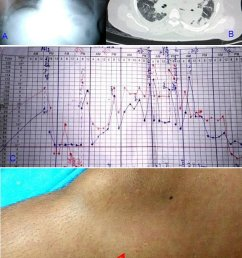 the patient s imagings fever chart and rash a chest radiograph showed cardiomegaly and [ 850 x 1215 Pixel ]