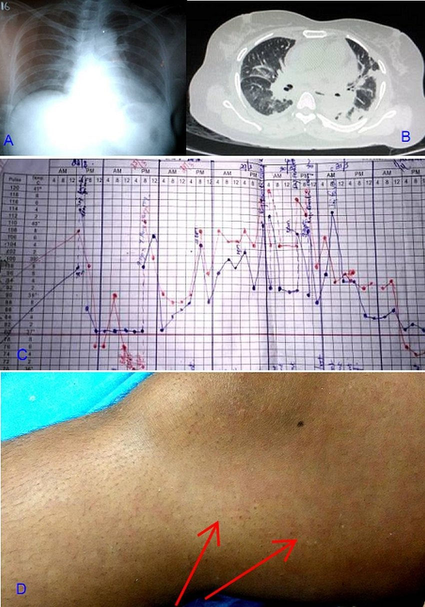 medium resolution of the patient s imagings fever chart and rash a chest radiograph showed cardiomegaly and